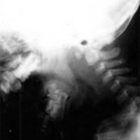 Caso 4. Rx de columna cervical en flexo extensión